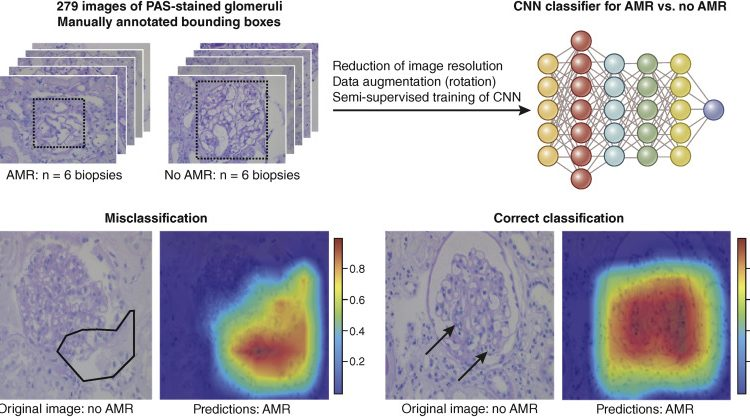 Artificial intelligence and machine learning in nephropathology